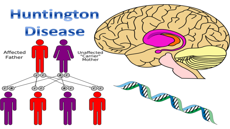 Huntington's Disease| Causes, Symptoms & Treatment Ultimate Guide