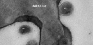 nueva bacteria en la saliva humana