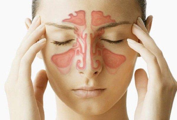 Cómo tratar la sinusitis con remedios caseros