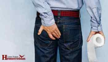 hemorroida externa tratamento caseiro