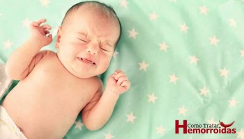 hemorroida em bebe