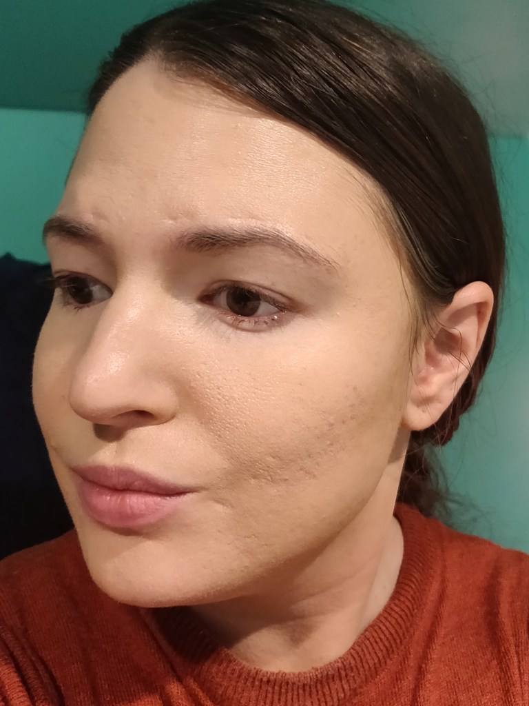 Left side of face with two light layers of foundation.
