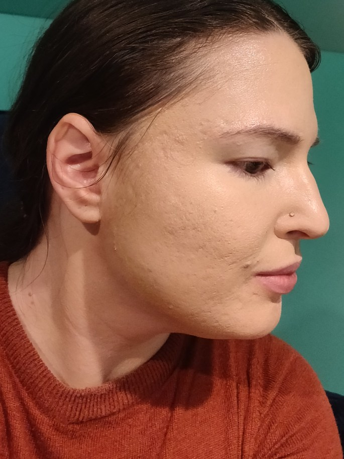 Right side of face with two, light layers of foundation applied with large brush.