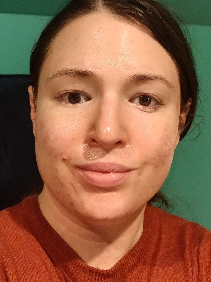 Skin healing from atopic dermatitis with residual scarring and hyperpigmentation.