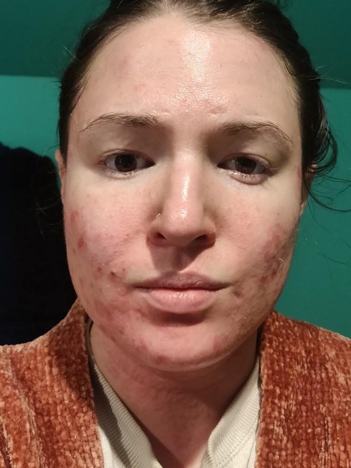Atopic Dermatitis in December 2019.