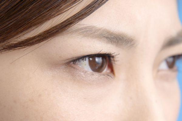 眉毛にニキビが出来る原因と早く治す5つのポイント