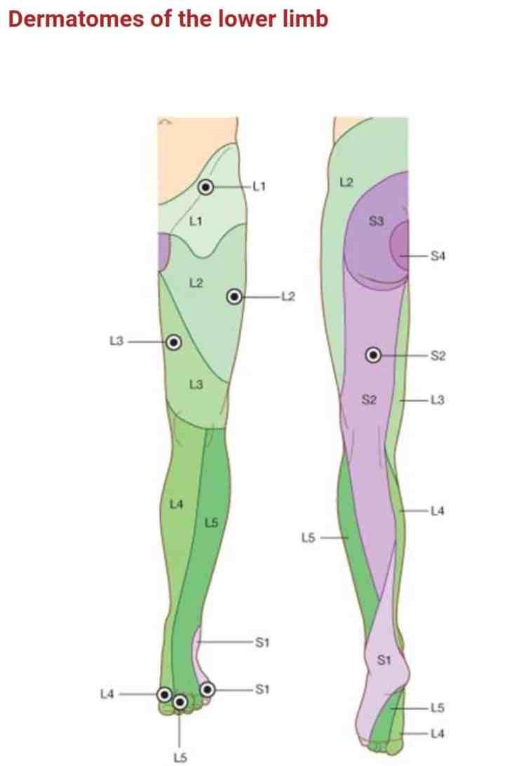 Protrusion Discale Temps Guerison : protrusion, discale, temps, guerison, Hernie, Discale, Lombaire, Symptômes,, Causes,, Traitements,, Faire