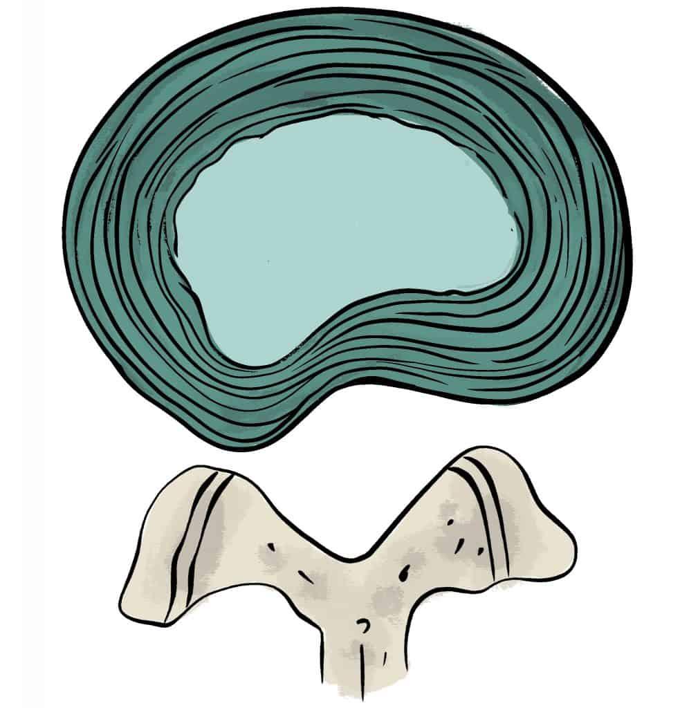 Protrusion discale postéro-latérale