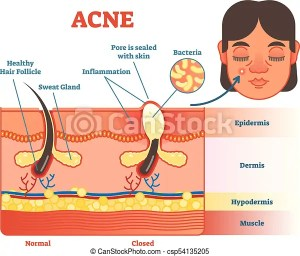 Acne vector diagram illustration with hair, pimple, skin