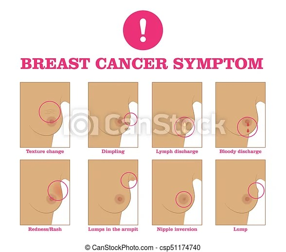 Breast cancer symptom. warning signs and danger, unusual changes and pain. information poster. female healthcare concept. white background ...