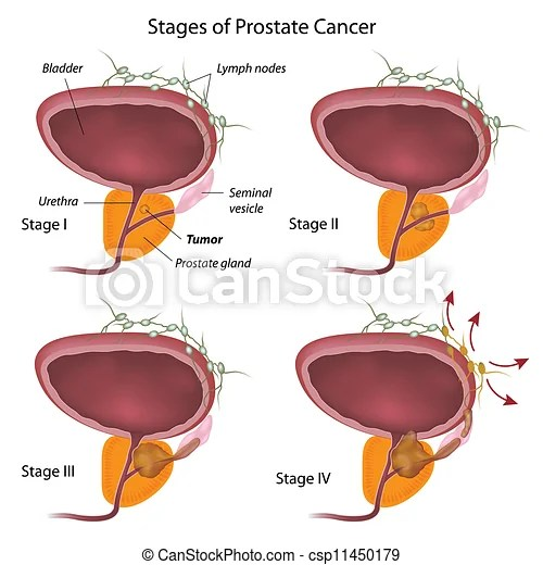 Vectors Illustration of Stages of prostate cancer, eps10 csp11450179 - Search Clipart, Illustration, Drawings, and EPS Clip Art Graphics Images