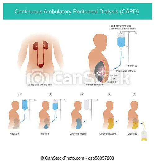Continuous ambulatory peritoneal dialysis capd. This is technical uses peritoneal cavity to transport dialysis fluid for