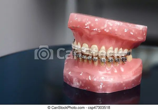 Human jaw or teeth model with metal wired dental braces, orthodontic presentation tool, closeup.