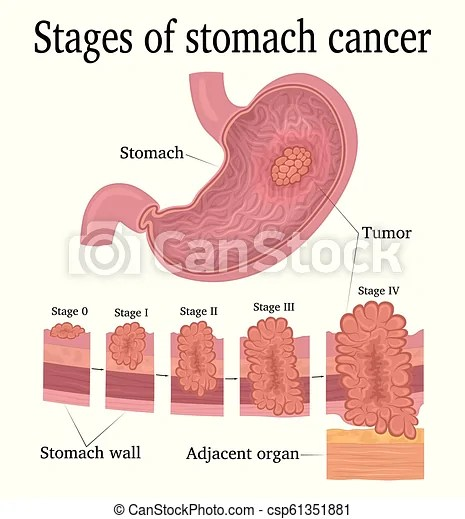 Stages of stomach cancer. Stages of development of a malignant tumor - cancer of the stomach.