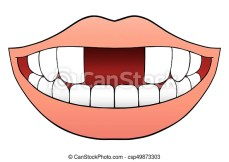 https://i0.wp.com/comps.canstockphoto.com/two-front-teeth-missing-vector-clipart_csp49873303.jpg?resize=229%2C162&ssl=1