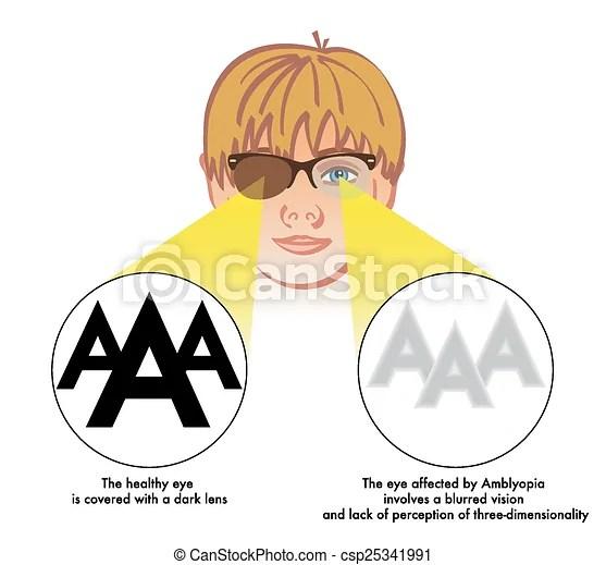 Amblyopia (ojo perezoso) La ilustración médica de los síntomas y las consecuencias de la ambleopía.