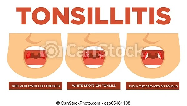 點, 扁桃腺, 腫脹, 白色紅, 扁桃腺炎. 病癥, symptoms., 冷, 打開, 恢復, 點, 扁桃腺, 治療, 醫學, 白色, 膿, 紅色 ...