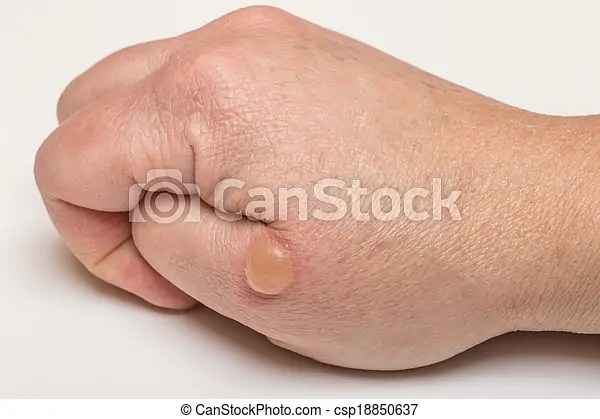 Blistered, bőr. Hólyag, ég, kéz.   CanStock