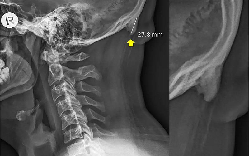 Resultado de imagen para hueso en forma de pico, llamado protuberancia occipital externa,