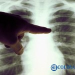 radiografia covid19 pulmones - Manzanillo registra sexto caso positivo a Covid-19