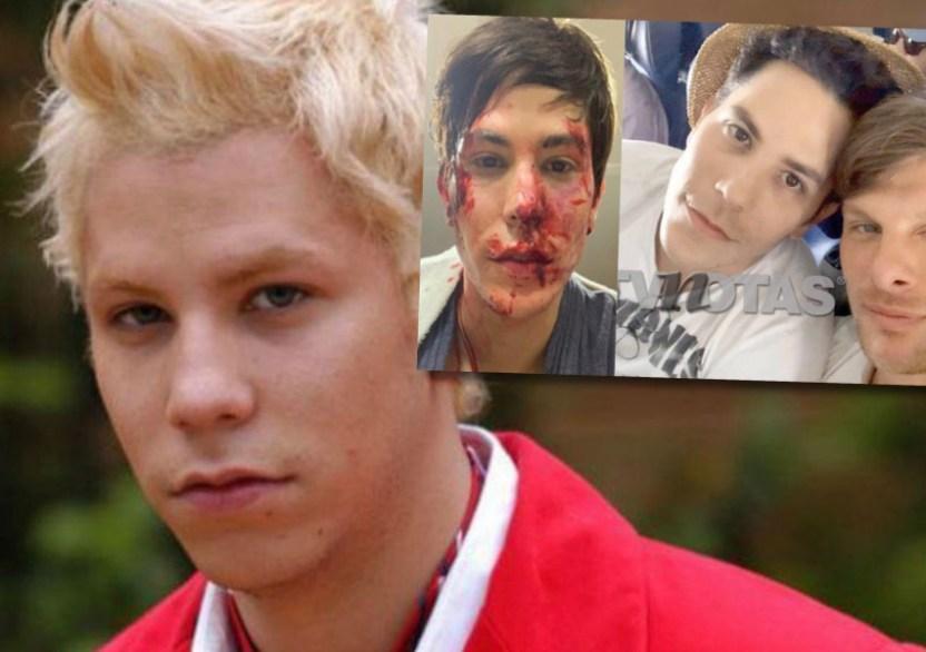 AF9F4B43 86D4 48C5 B7A3 0FE84D653CC2.jpegresize852600 - Ex RBD Christian Chávez encerró, golpeó y le partió una botella en la cabeza a su novio estando drogado