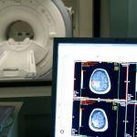 alzheimer - Científicos descubren nueva alteración en el cerebro de pacientes con alzheimer; podría tratarse con terapia