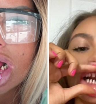 dientes 1 - TikTokers estão lixando os seus dentes para ter um sorriso perfeito. Dentistas advertem o perigo