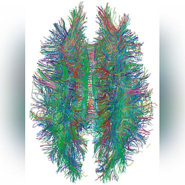 White matter connections with MRI tractography in colour