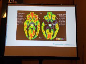 Kaiser Trauma Brain