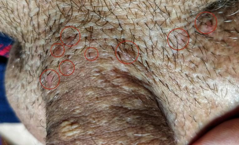 tratamentul cu viermi rapid pleoapa inferioară a papilomului