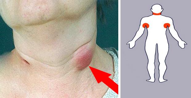 5 Remedios para ganglios linfticos inflamados  Conecta Salud