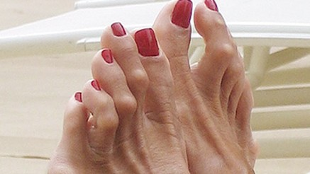contracted big toe