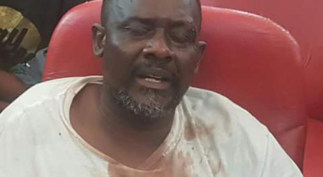Adam Bombole empêché de visiter Franck Diongo gravement malade