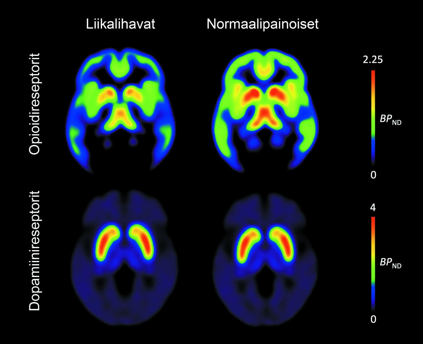 New Evidence Links Obesity To The Brain S Addiction