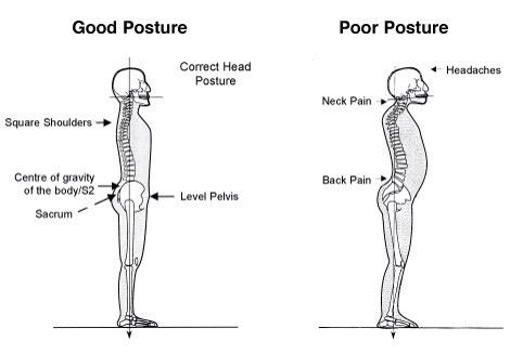 Fix Anterior Pelvic Tilt: Strength and Stretch Exercises