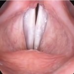 Major Medical Advance: Working Vocal Cords Grown in a Lab Out of Human Cells