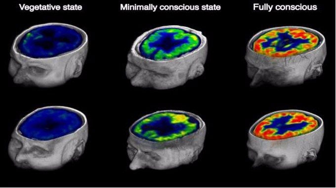 Images from PET scans comparing fully conscious control subjects to coma patients. (Credit: Stender et. al)