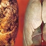 How to Clean Up and Detox Your Lungs in just 3 Days