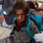 US-Backed War Risks Killing an 'Entire Generation' of Yemeni Children
