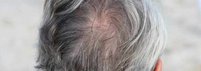 Scientists Finally Figure Out How Stress Turns Hair Gray