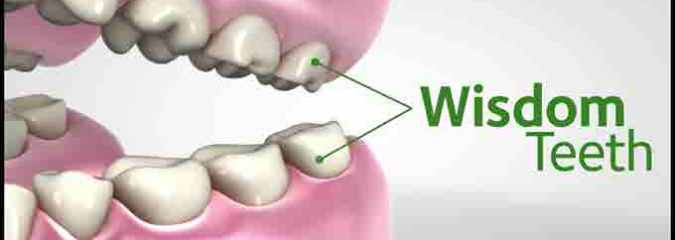 What is Wisdom Tooth Extraction? How Can You Take Care of it?