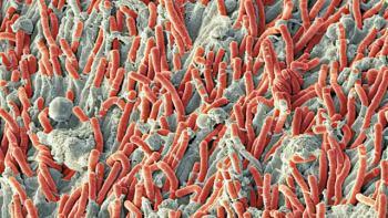 Vue microscopique du tartre calcifié (Getty Images).