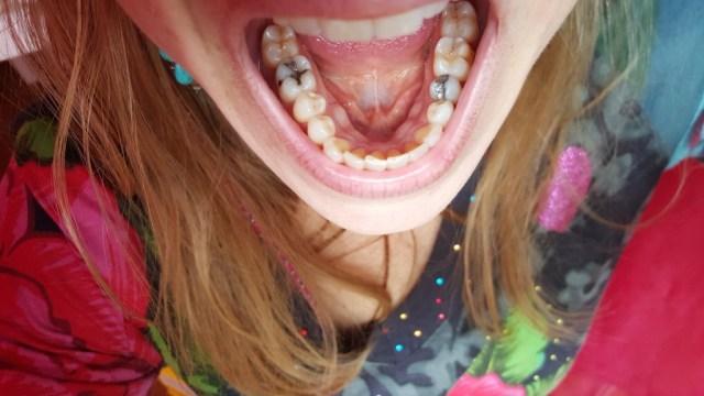 Les exostoses mandibulaires une curiosit anatomique for Fenetre mandibulaire