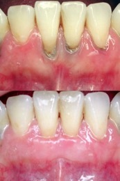 Greffe gingivale (dentsblanches.ch).