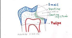 """Résultat de recherche d'images pour """"dentine ramollie"""""""