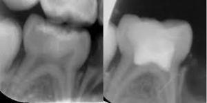 Radiographie de dent traitée par pulpotomie (eugenol.com)