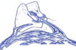 Crochet de ROACH (biodenthese?fr)