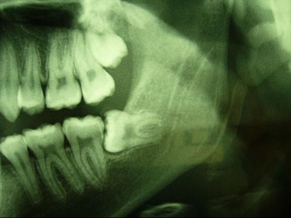 Sur ce cliché panoramique, les racines de 38 sont plus nettes que le canal mandibulaire, elles sont donc plus vestibuaires