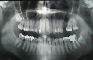 Radio panoramique du parient: il semble évident que la dent se sagesse inférieure gauche est en cause!
