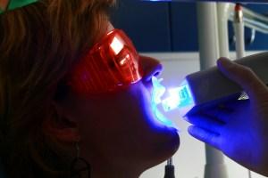 Une lumière spéciale active l'action du gel (implatdentaire.ro)